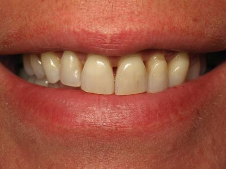 Before-Gum Loss Due to Periodontal Disease