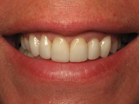 After-Gum Loss Due to Periodontal Disease