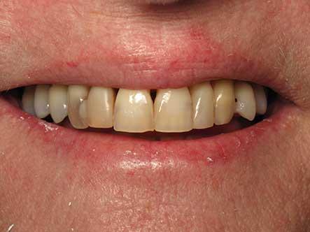 Before-Smile Rejuvenation