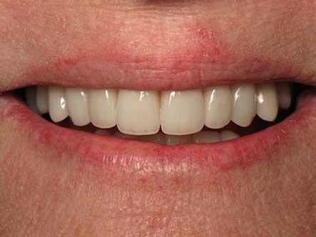 After-Smile Rejuvenation