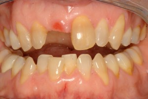 Del Mar patient prior to receiving dental implants in La Jolla.