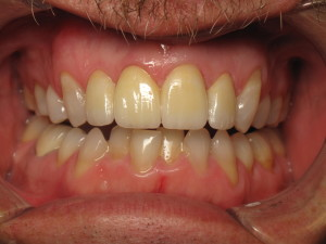 Patient after receiving a tooth replacement via tooth implant.