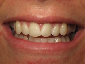 Rancho Santa Fe Invisalign patient before Acceledent.