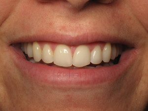 La Jolla Invisalign patient after Acceledent.