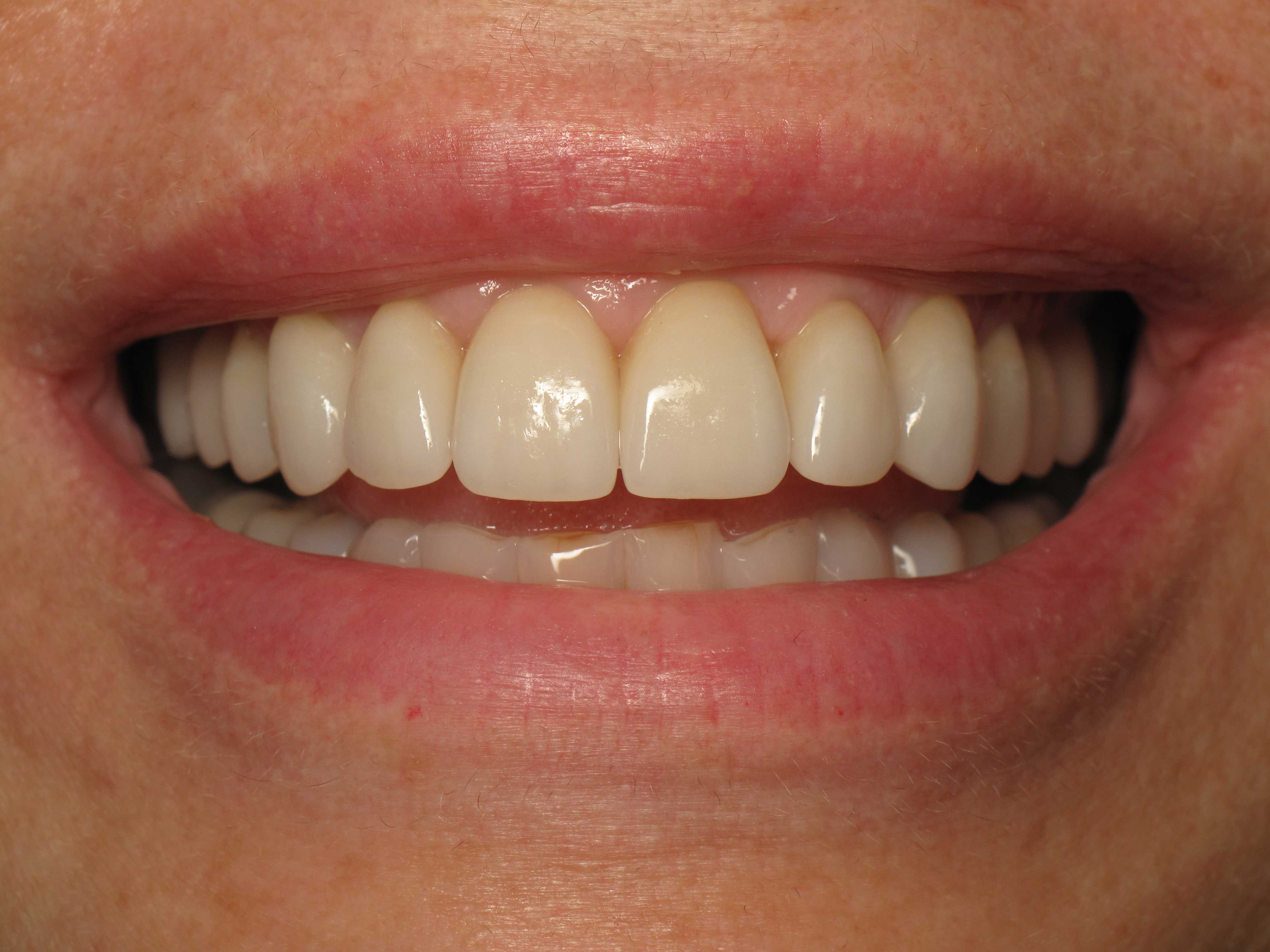 After-Years of Tooth Wear