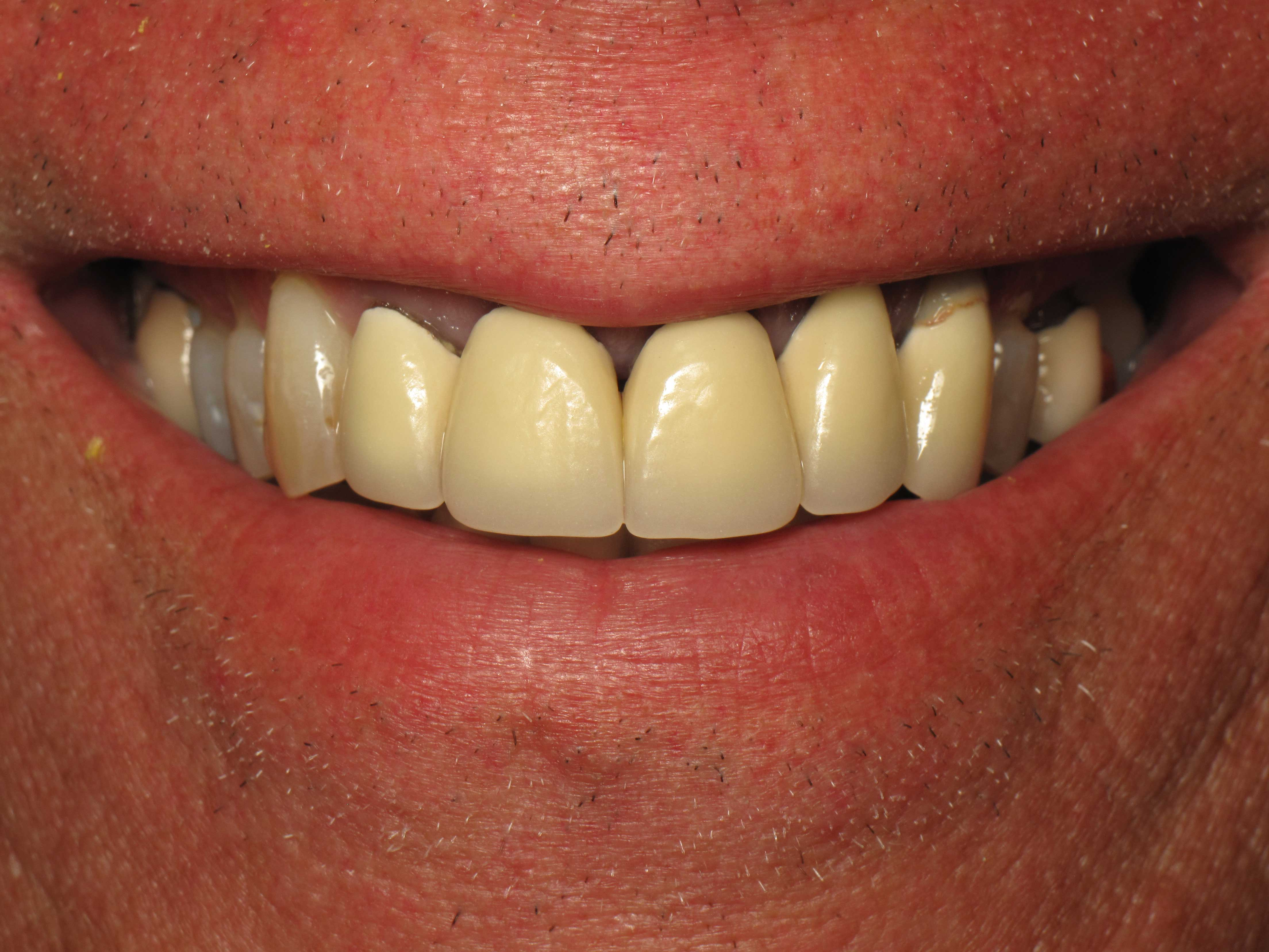 Before-Full Smile Makeover