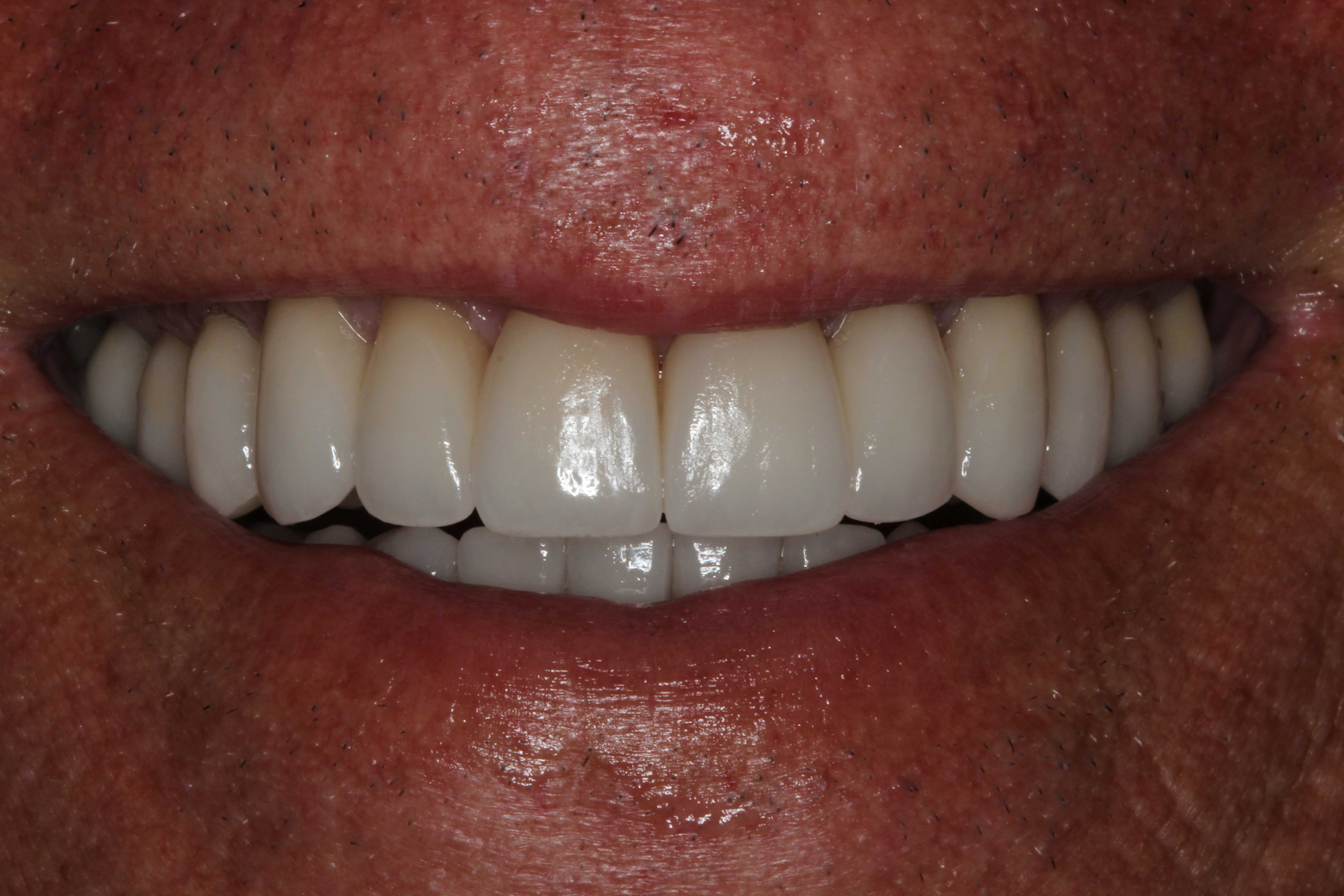 After-Full Smile Makeover