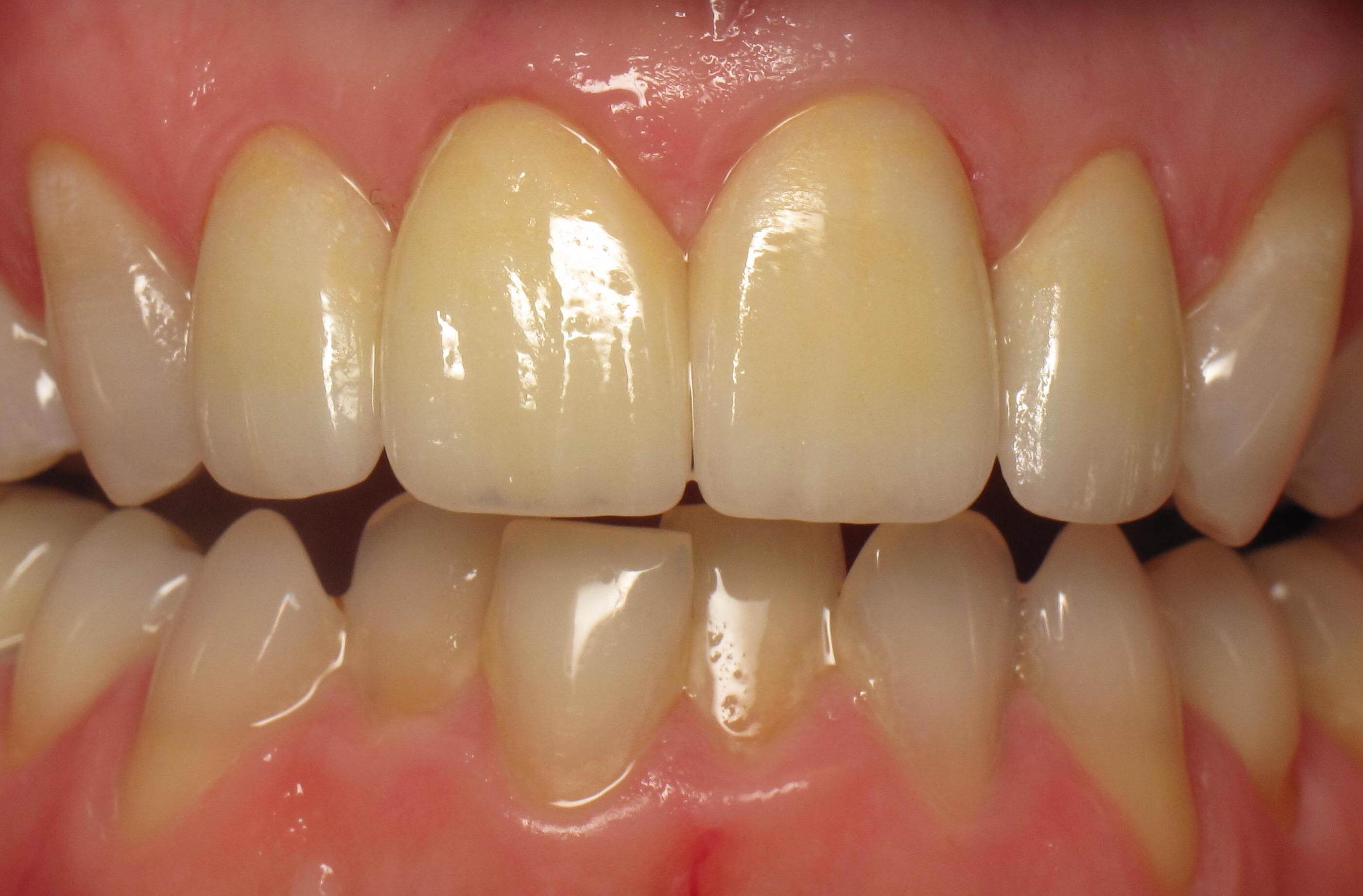After-Missing Front Tooth Restored with Same Day Implant