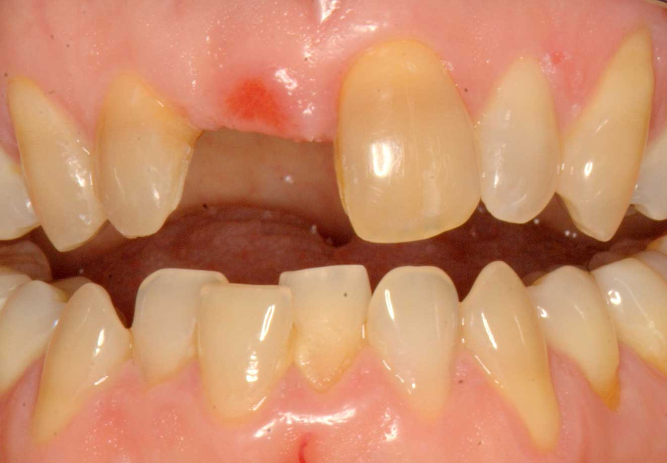 Before-Missing Front Tooth Restored with Same Day Implant