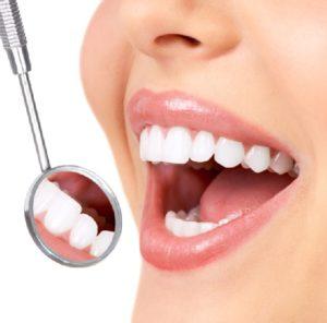 Dental bonding can help La Jolla, Rancho Santa Fe, and Del Mar patients with chipped teeth.