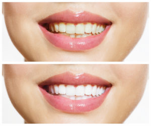 White teeth, courtesy of professional teeth whitening available to patients near La Jolla, Rancho Santa Fe, and Del Mar.
