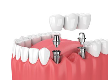 Implant dental bridge for La Jolla, Rancho Santa Fe, and Pacific Beach San Diego patients with missing teeth.