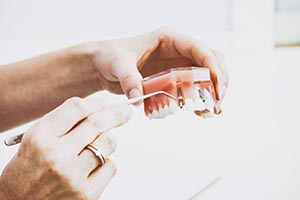 All on 4 dental implants acts like permanent dentures for patients in Rancho Santa Fe, La Jolla, and Del Mar.