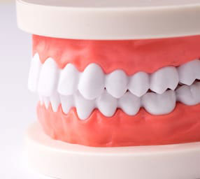 Implant supported as well as partial dentures are available to patients near La Jolla, Rancho Santa Fe, and Del Mar.