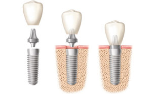 Photo showing a tooth implant, available in Rancho Santa Fe and La Jolla.