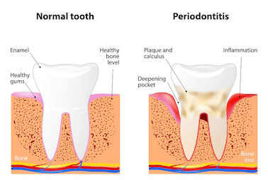 Advanced periodontal disease requires gum disease treatment for La Jolla and Rancho Santa Fe patients.