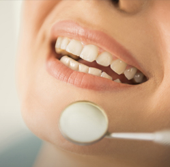 Full mouth reconstruction can help La Jolla and Pacific Beach patients with broken teeth, <a href=
