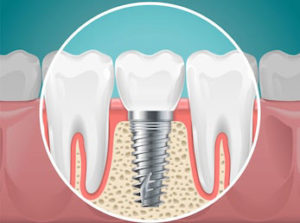 Most La Jolla and Rancho Santa Fe dental patients choose dental implants when having to pick between dentures vs implants.
