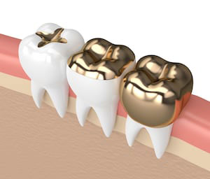 Restorative dentistry services can help restore damaged teeth with tooth decay from the communities of La Jolla, Rancho Santa Fe, and Pacific Beach San Diego.