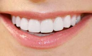 Close up image of prepless porcelain veneers for teeth, available in La Jolla and Rancho Santa Fe.