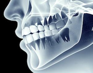 Dental Crowns La Jolla CA - Weston Spencer DDS Pacific Beach