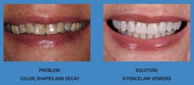 Tooth Color Improvement Porcelain Veneers