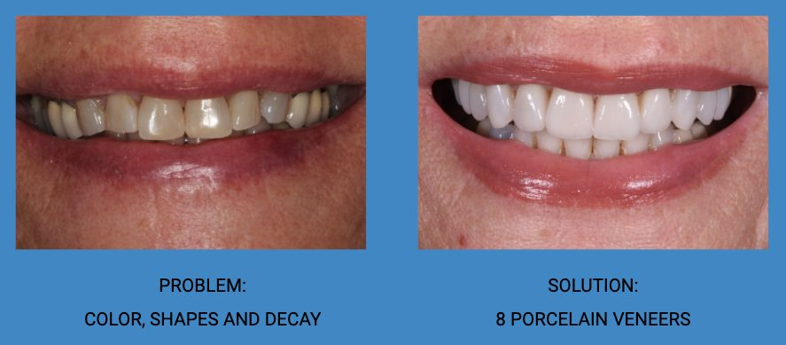 Tooth Decay Porcelain Veneers Before and After - Weston Spencer La Jolla Dentist