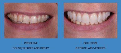 Tooth Shape Improvement Porcelain Veneers