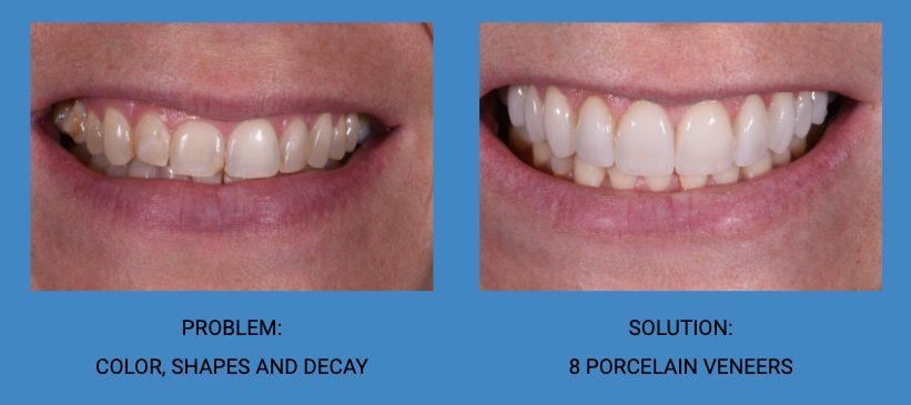 Tooth Shape Improvement Porcelain Dental Veneers Before and After - Weston Spencer La Jolla Dentist