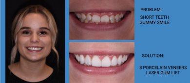 Gummy Smile Makeover Porcelain Veneers