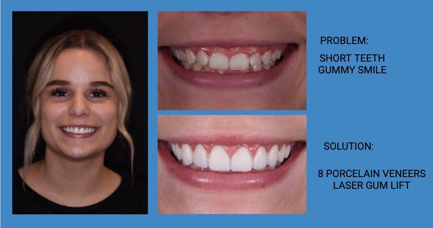 Gummy Smile Porcelain Dental Veneers Before and After - Weston Spencer La Jolla Dentist