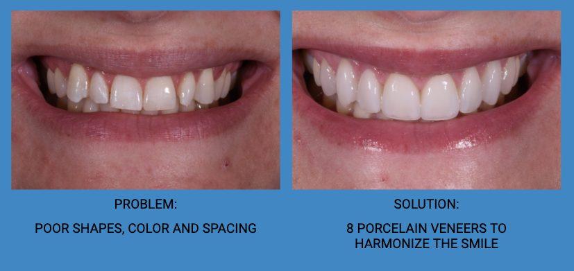 Tooth Spacing Porcelain Dental Veneers Before and After - Weston Spencer La Jolla Dentist