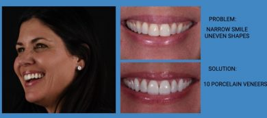 Narrow Smile Improvement Porcelain Veneers