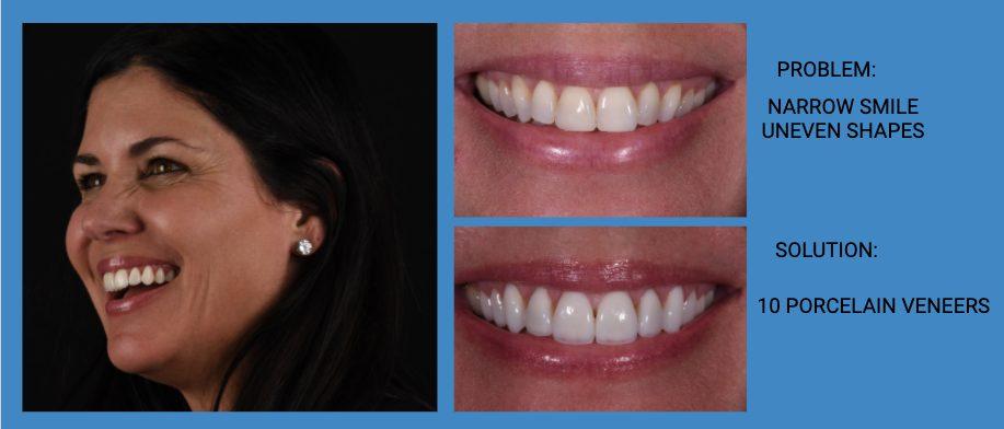 Uneven Smile Porcelain Dental Veneers Before and After - Weston Spencer La Jolla Dentist