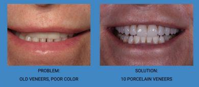 Replacement Dental Veneers