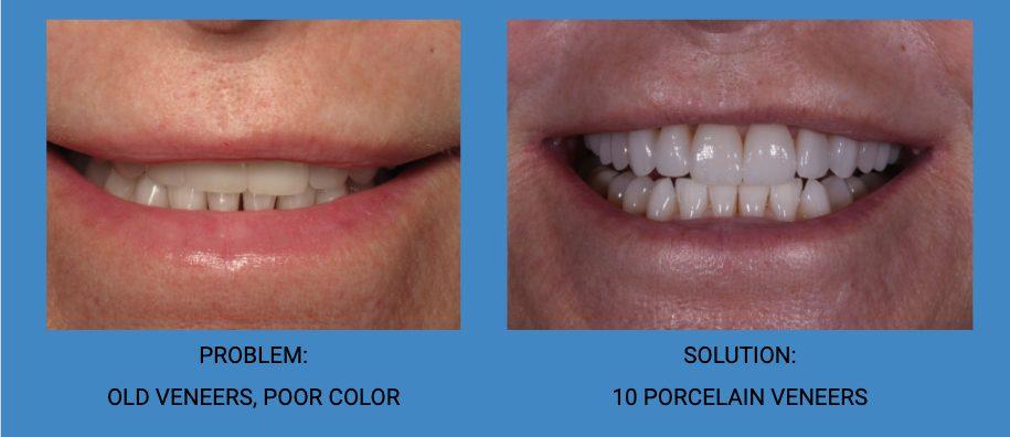 Porcelain Dental Veneers Replacement Before and After - Weston Spencer La Jolla Dentist