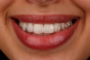 Invisalign Clear Braces La Jolla California - Weston Spencer DDS North Pacific Beach